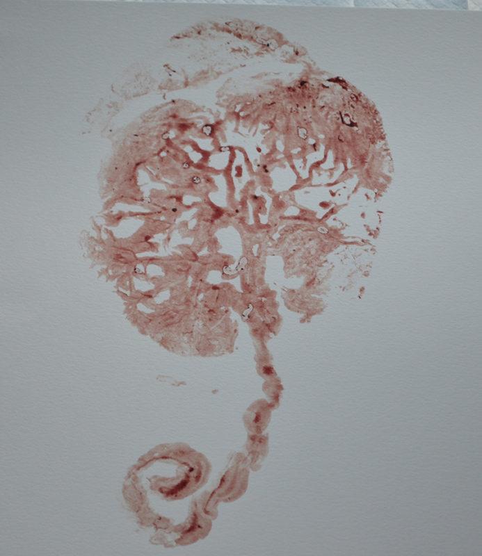 placenta twin print from Fredericksburg va. mom